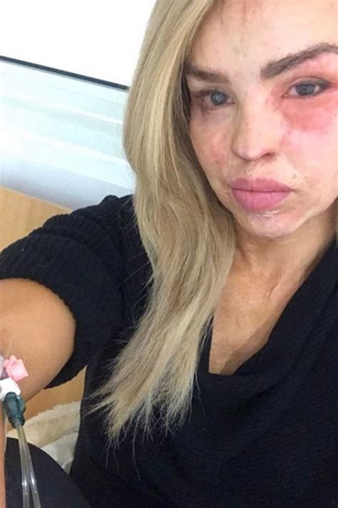 Katie Piper reveals a heartbreaking conversation with