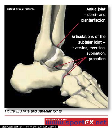How long for swelling to subside after a sprain? (MRI